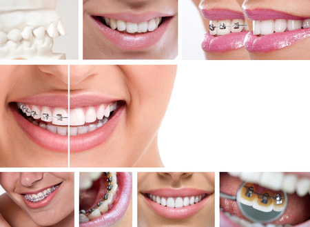 dental braces - lingual braces, before and after Stock Photo - 22631436