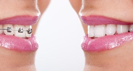 lachend met beugels, tanden na de behandeling Stockfoto