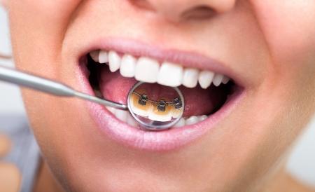 vrouw die onzichtbare lingual beugels op tandspiegel Stockfoto