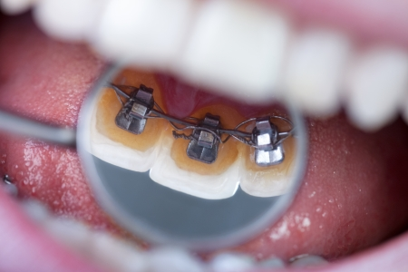 braces:  invisible lingual braces on dental mirror