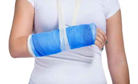 broken arm: Female patient with a cast on arm, isolated on white background