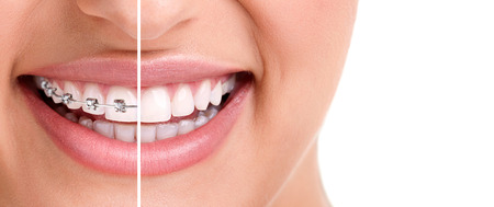 dental smile: woman teeth and smile. Close up,half with braces  Stock Photo