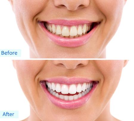 dientes sucios: blanqueamiento - blanquear el tratamiento, antes y después, dientes de la mujer y la sonrisa, cerrar, aislados en blanco Foto de archivo