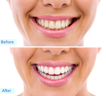 denture:  whitening - bleaching treatment ,before and after ,woman teeth and smile, close up, isolated on white  Stock Photo