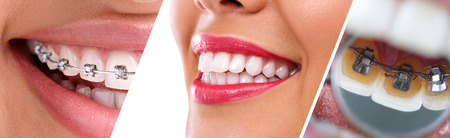 braces:  Collage of braces for correction of human teeth