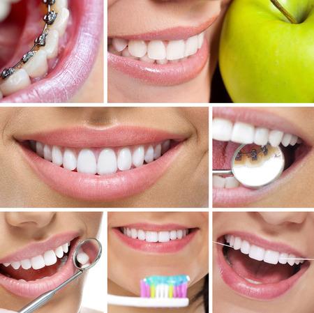 teeth braces: collage of white healthy smiling teeth