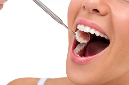 boca abierta: Abra la boca con los dientes perfectos con aislado más de blanco