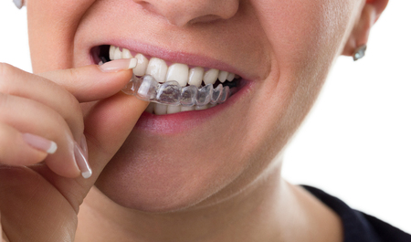 woman puts preventive teeth braces