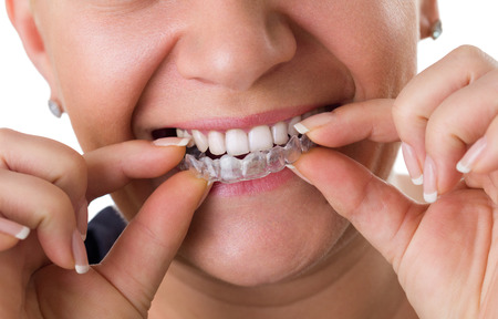 braces: Transparent teeth braces, concept dental correction