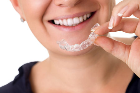 braces: Woman with perfect teeth holding invisible braces, correction teeth braces for night