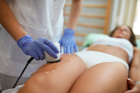 shockwave: Procedure for women thigh for cellulite. Stock Photo