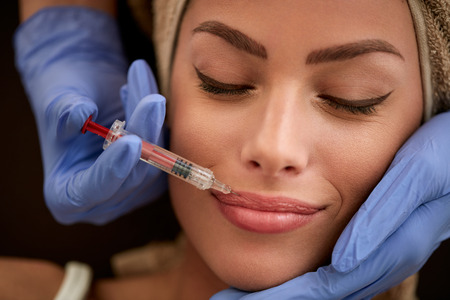Lips botox, beauty correction treatment