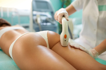 close-up of woman lying receiving epilation laser treatment on buttock