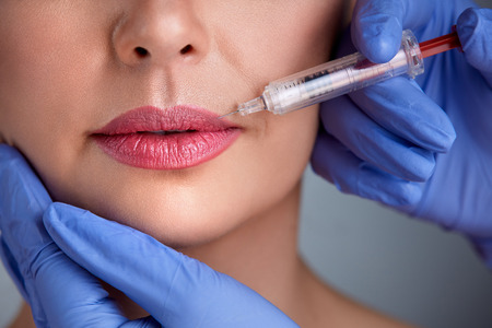 augmentation: Treatment with botox hyaluronic collagen  injection Stock Photo
