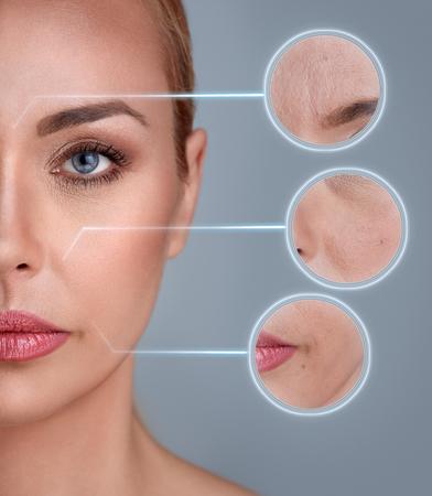 Retrato de mujer con el zoom detalle de la piel: el daño, el acné, las arrugas Foto de archivo
