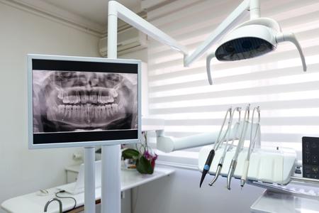 현대 치과 진료소의 치과 용 엑스레이 영상