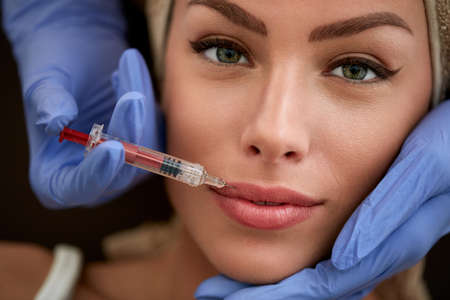 Young beauty woman receiving injections in lips. Plastic surgery. Stockfoto
