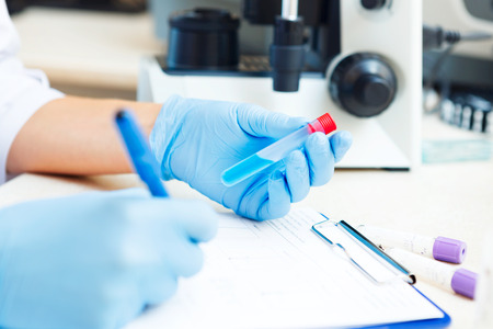 Closeup of a scientist working with samples in lab. photo