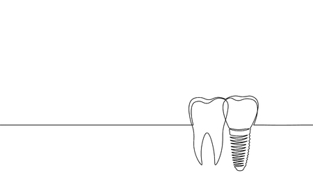 Single continuous line art anatomical human tooth silhouette implant. Healthy medicine recovery molar cavity concept design world oral health day one sketch outline drawing vector illustration art