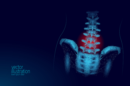 Human spine hip lumbar radiculitis pain low poly. Geometric polygonal particle triangle point line future medicine technology blue red painful area vector illustration art Illustration
