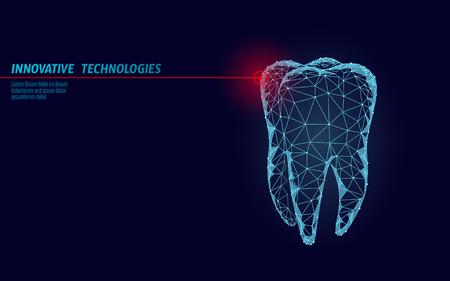 3D tand innovatie laser tandheelkunde veelhoekige concept. Stomatologie symbool laag poly driehoek abstracte orale tandheelkundige medische zorg bedrijf. Verbonden stip deeltje modern render blauwe vectorillustratie