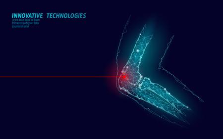 Illustration vectorielle de l'articulation du coude humain modèle 3d. La technologie future de conception low poly guérit le traitement de la douleur. Fond bleu et rouge blessure homme corps bras médecine modèle art