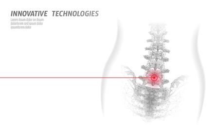Fizjoterapia laserowa kręgosłupa człowieka. Chirurgia obszaru bólu operacja nowoczesna medycyna technologia trójkąty low poly 3D render ilustracja wektorowa przepukliny pleców kobiet
