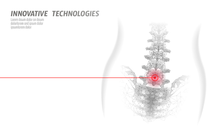 Laser physiotherapy human spine. Pain area surgery operation modern medicine technology low poly triangles 3D render female back hernia vector illustration