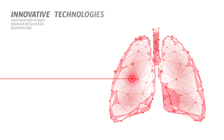 Human lungs laser surgery operation low poly. Medicine disease drug treatment painful area. Red triangles polygonal 3D render shape. Pharmacy tuberculosis cancer template vector illustration