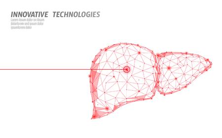 Menschliche Leberlaseroperation mit niedrigem Poly. Medizin Krankheit medikamentöse Behandlung schmerzhafter Bereich. Rote Dreiecke polygonale 3D-Renderform. Apotheke Hepatitis-Krebs-Vorlage-Vektor-Illustration