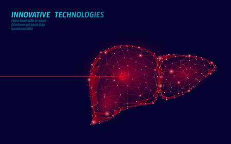 Operación de cirugía láser de hígado humano bajo poli. Área dolorosa del tratamiento de la droga de la enfermedad de la medicina. Forma de render 3d poligonal de triángulos rojos. Ilustración de vector de plantilla de cáncer de hepatitis de farmacia Ilustración de vector