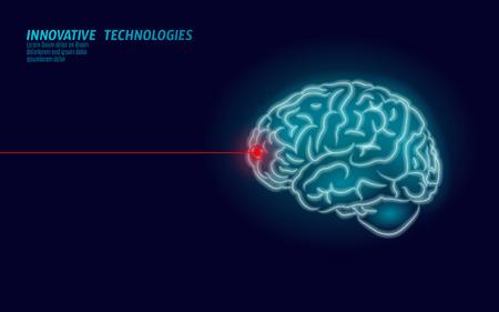 Tratamiento de cerebro de cirujano láser render 3d de baja poli. Drogas nootrópicas capacidad humana inteligente salud mental. Medicina rehabilitación cognitiva en la ilustración de vector de enfermedad de Alzheimer y demencia