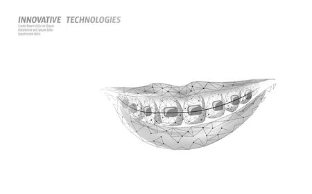 3D orthodontic braces. Wonam smile tooth trainer. Dental theatment heath care medical banner. Low poly design dentist correction fix vector illustration Illustration