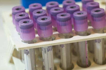anticoagulant: Primer plano de unos 3 ml tubos de ensayo con tapones de color malva para las muestras de sangre sobre una rejilla Est�n hechas de pl�stico transparente y de mantenimiento de anticoagulante EDTA