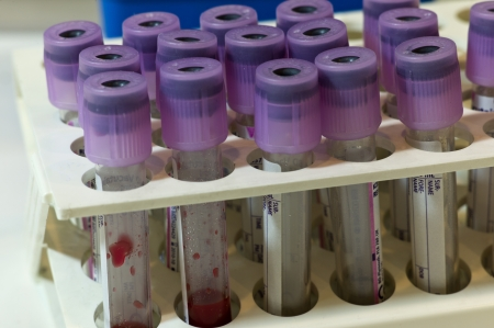 anticoagulant: Close up of some 3 ml test tubes with mauve plugs for blood samples on a rack  They are made of clear plastic and keeping EDTA anticoagulant  Some drops of blood inside two tubes
