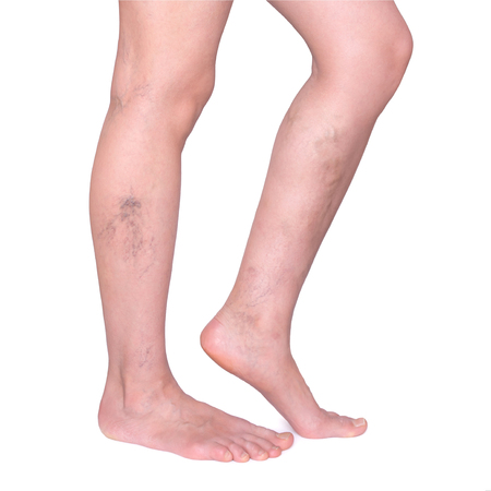 Varicose veins in the legs. Woman legs isolated on white Stock Photo