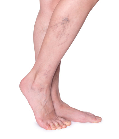 Varicose veins in the legs. Woman legs isolated on white 免版税图像
