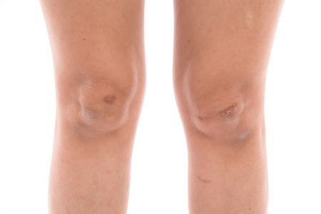 scars: Close up scars on woman legs isolated
