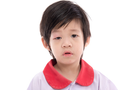 and eyelid: Cute asian child with a swollen eyelid  on white background isolated Stock Photo