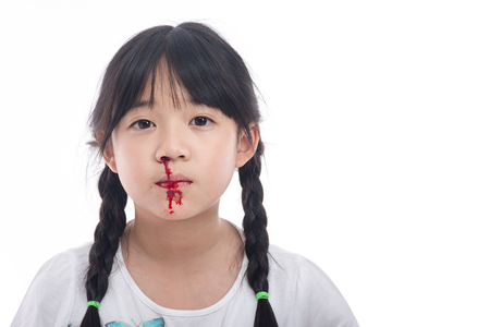 haemoglobin: Asian girl with bleeding from the nose on white background isolated