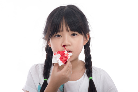 Asian girl with bleeding from the nose on white background isolated
