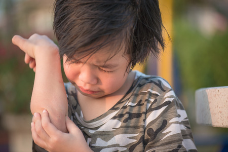 elbow band: Close up of asian child injured at elbow