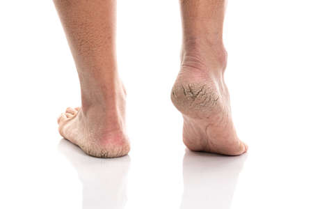Close up of Cracks on Heels isolated white background Stockfoto