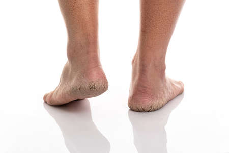 Close up of Cracks on Heels isolated white background