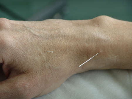 Acupuncture in a hand photo
