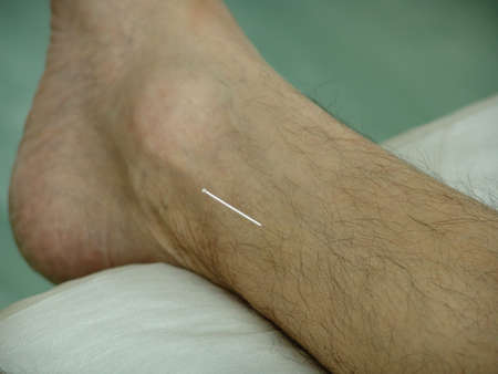 Acupuncture in an leg
