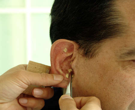 Acupuncture in an ear photo