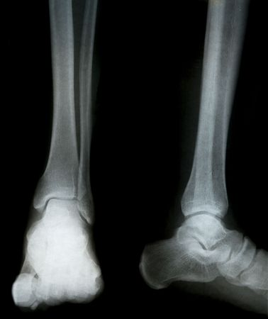 legs and feet xray for medical diagnosis