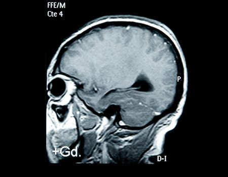 brain mri scan image for medical diagnosys