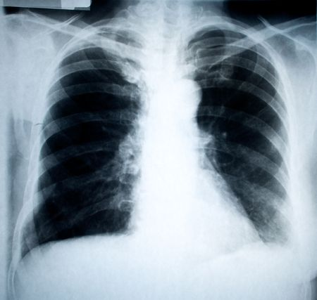 chest frontal xray image for medical diagnosis photo